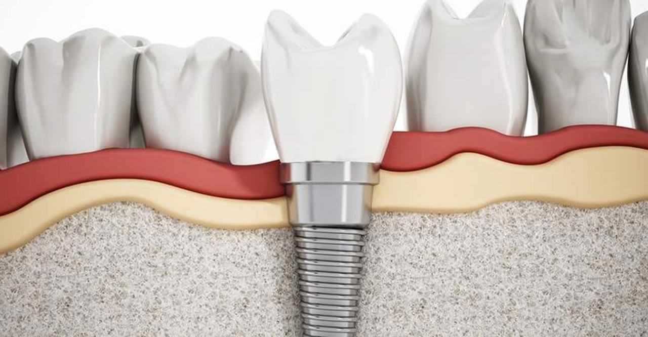 Impianti dentali e osteoporosi