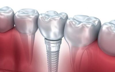 Implantologia: controindicazioni