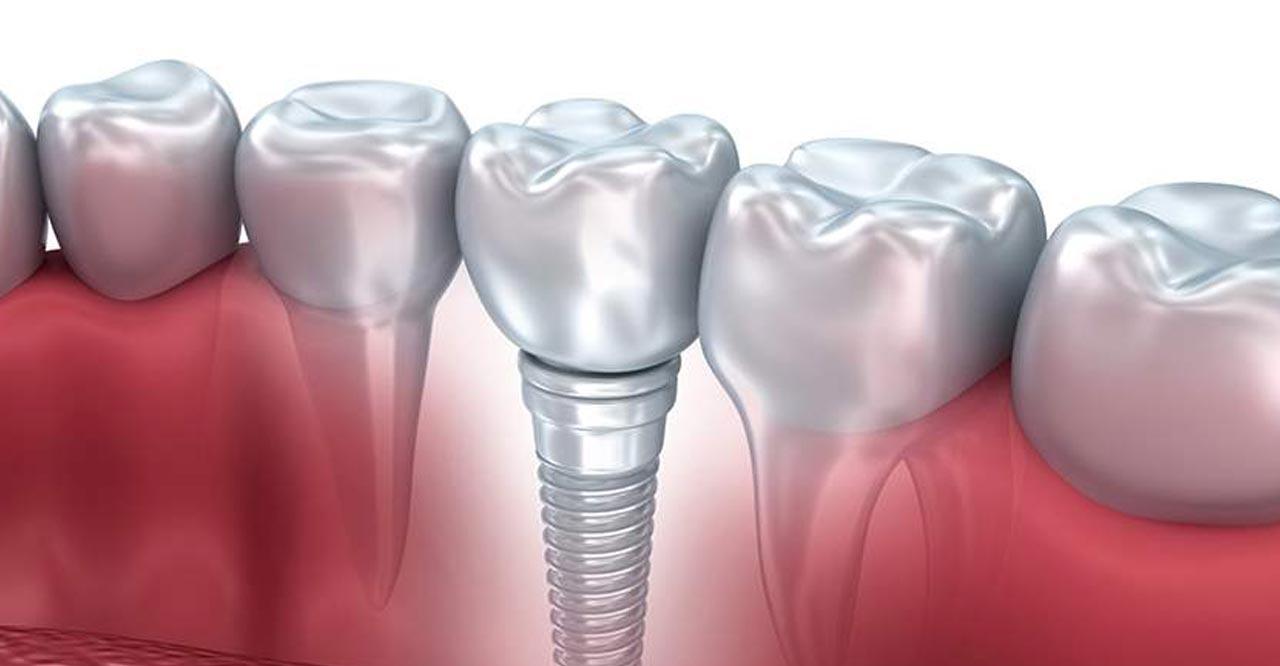 Implantologia controindicazioni