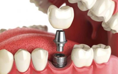 Implantologia dentale con innesto osseo