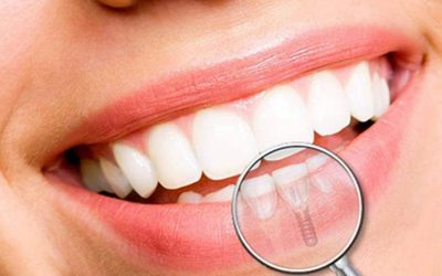 Implantologia dentale a Brescia: i costi
