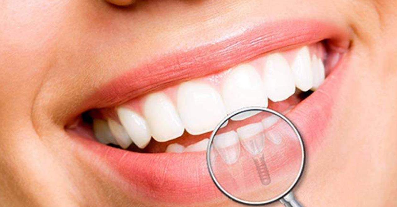 Implantologia dentale, i costi
