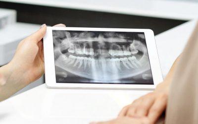 Protesi immediata con tecnica digitale