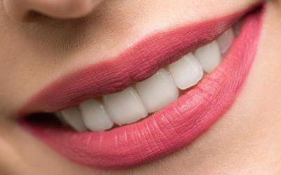 Test di autovalutazione parodontale