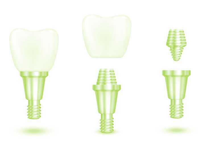 Impianti Dentali - Studio Fiammenghi