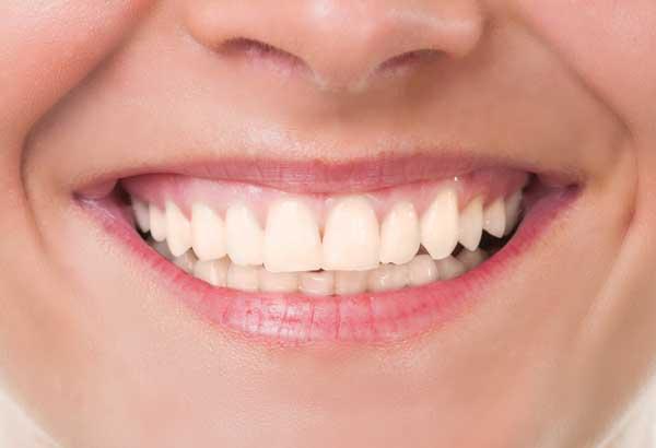 Igiene e prevenzione - Dopo - Dr Sergio Fiammenghi Odontoiatra