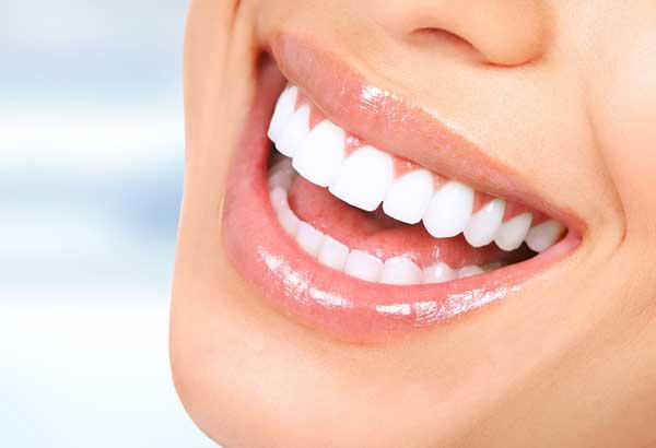 Sbiancamento denti a Brescia - Dr Sergio Fiammenghi Odontoiatra