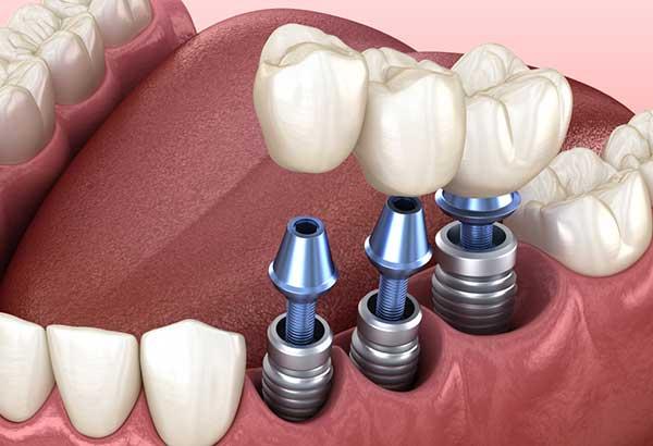 Impianti Dentali - Sergio Fiammenghi Odontoiatra