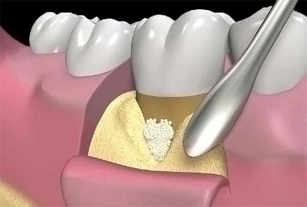 Chirurgia Paradontale - Dr Sergio Fiammenghi Odontoiatra