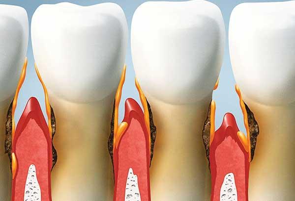 Parodontologia - dr Sergio Fiammenghi Odontoiatra